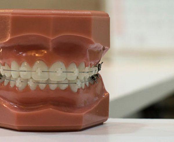 Ortodoncia clínica dental García Vega
