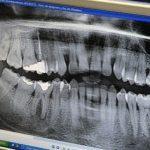 Cómo elegir dentista 8